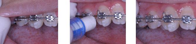 Cabinet d'orthodontie du Dr. Jean-Matthieu PLANTAVIN à Martigues